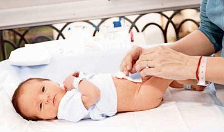Уход за пуповиной новорожденного