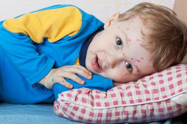 Как правильно ухаживать за детьми во время болезни лишаем?