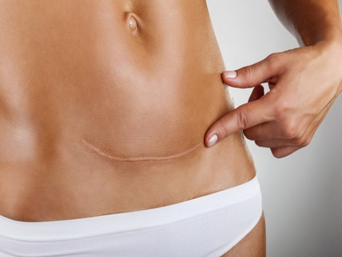 Как похудеть после кесарева сечения