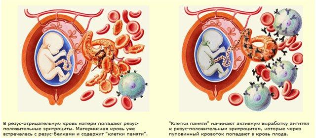 Чем опасен резус-конфликт при беременности?