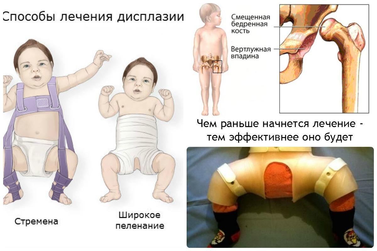 Дисплазия тазобедренных суставов у детей стремена фото дисплазия тазобеддренных суставов