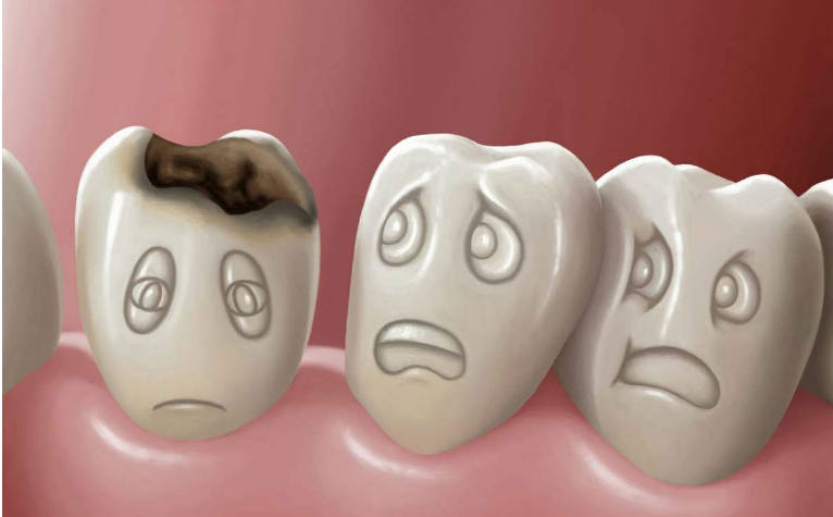 Кариес молочных зубов у ребенка до 2 лет