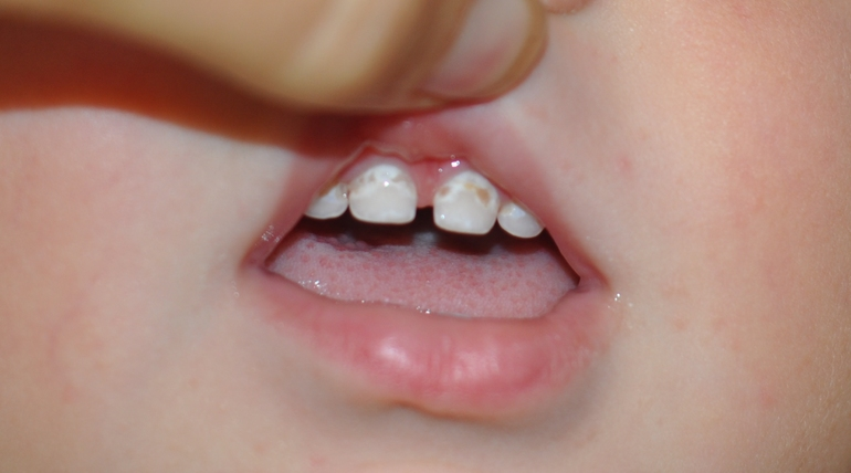 Появился налет на молочных зубах