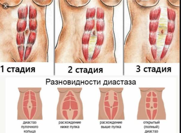 Степени диастаза
